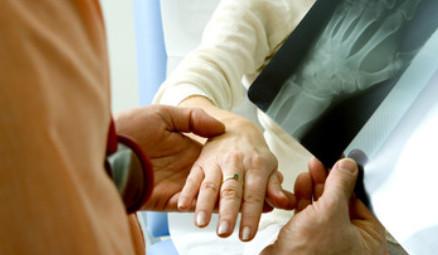 Lekarz omawia prześwietlenie ręki kobiety