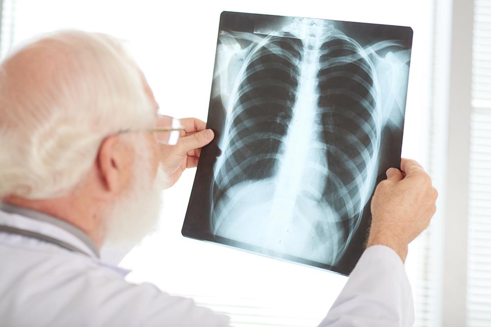 Doświadczony lekarz sprawdza zdjęcie wykonane rentgenem